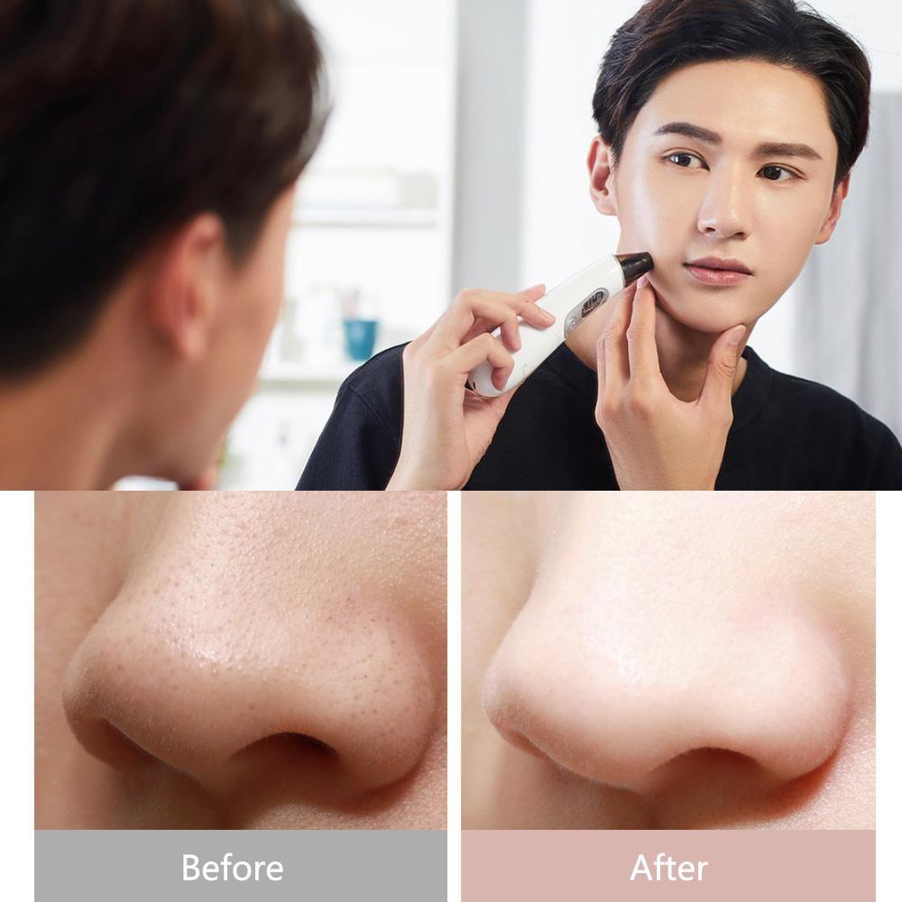 Xiaomi Wellskins Electric Blackhead Cleaner Deep Pore Cleanser Acne Pimple Remova (1)